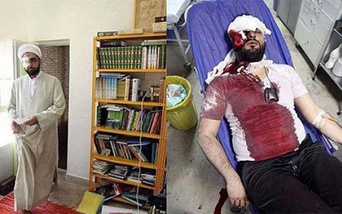 Hojatoleslam Ali Beheshti was beaten by a woman.