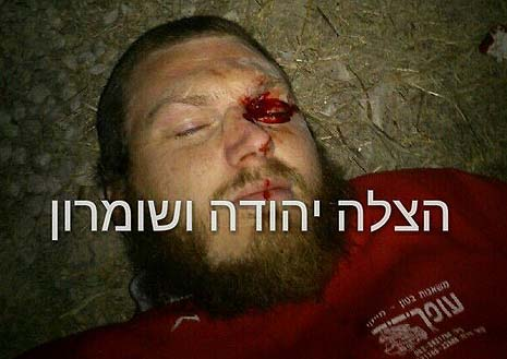 One of the civilians beaten up by riot police in Yitzhar. Photo: Hatzalah Yehuda v'Shomron