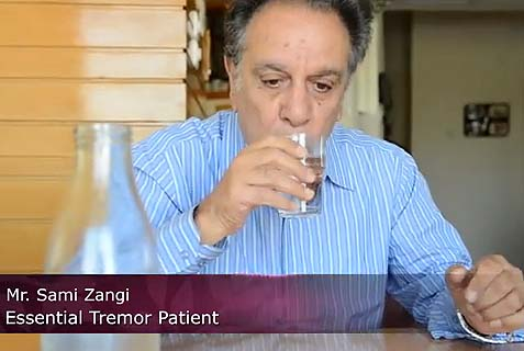Israeli Noninvasive Surgery Heals Chronic Tremor