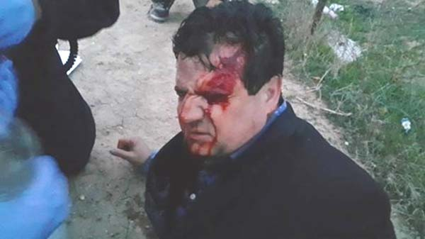 MK Ayman Odeh (Joint Arab List) was injured by a rioter's rock